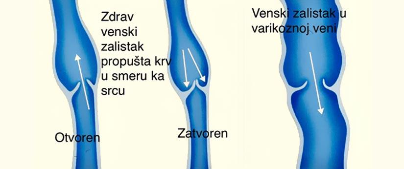 Bolesti vena Kolegium Medic Beograd