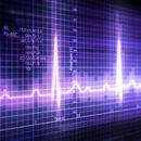 Lupanje srca - palpitacije