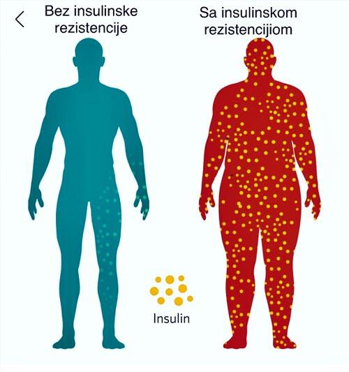 Kolegium Medic Beograd - Insulinska Rezistencija