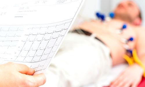 EKG pregled - Kolegium Medic