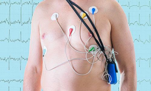 Holter EKG - Kolegium Medic