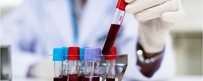 Hematologija - Kolegium Medic