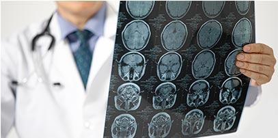 Neurološki pregled - Kolegium Medic